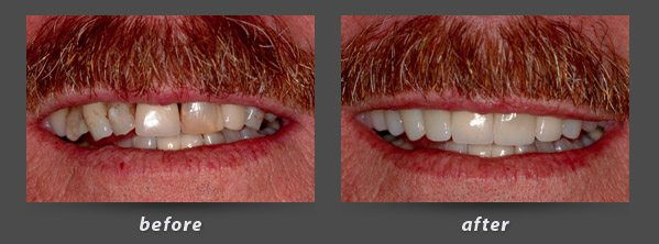 Before and after photos of Burlingame dentist Dr. Wong's patient with dental crowns