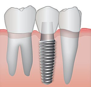 A dental implant can be as stable as a natural tooth
