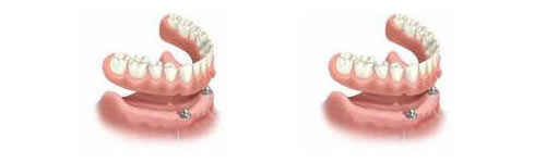 dental implants can secure dentures