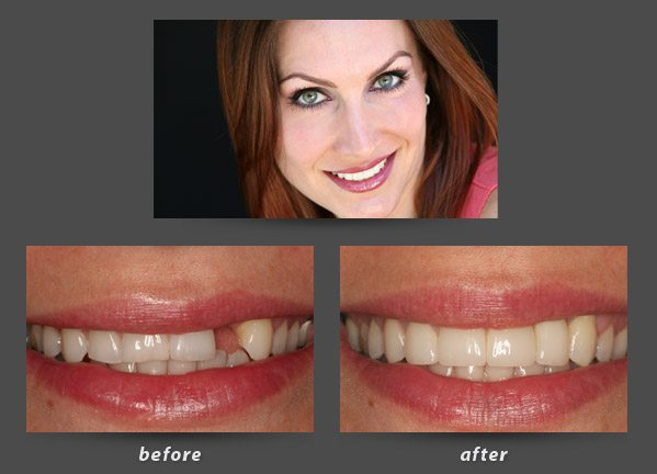 Before and after photos of a patient of Foster City dental implant dentist Dr. Wong who received a dental implant