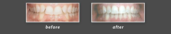before and after photos of Invisalign patient of Dr. Wong, a Burlingame dentist