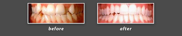 before and after photos of Invisalign patient of San Mateo dentist Dr. Wong