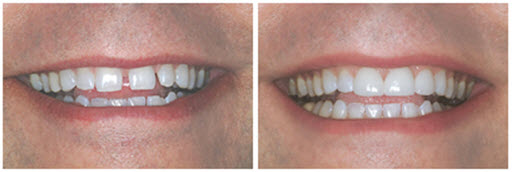 before and after photos of a dental veneers patient of Foster City dentist Dr. Wong