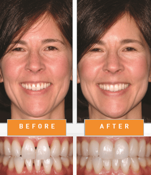 before-after-bioclear-smile