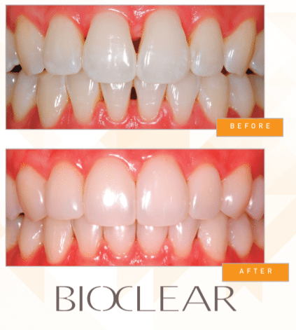 before-after-bioclear