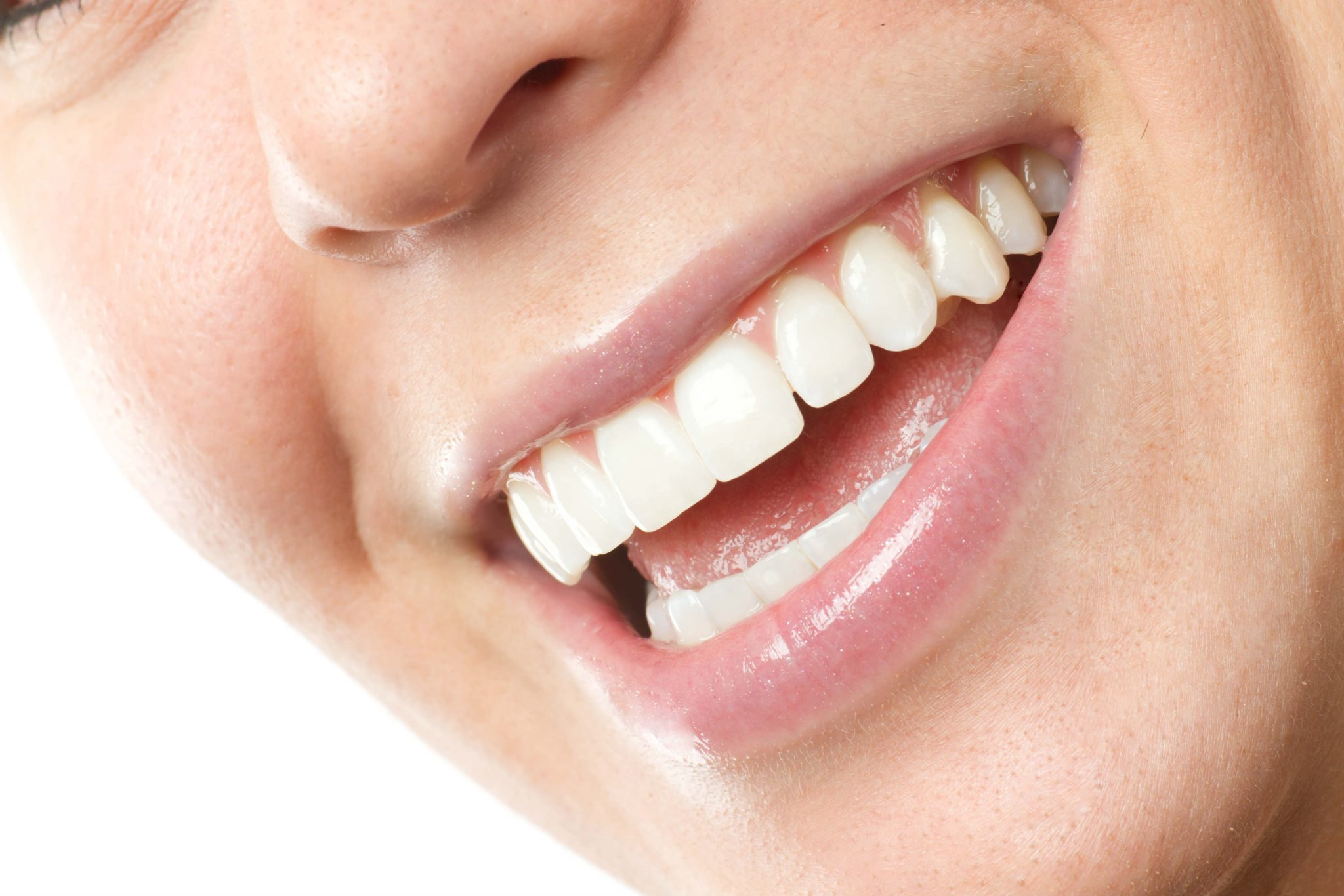 woman-smiling-closeup-with-white-teeth-and-straight-smile