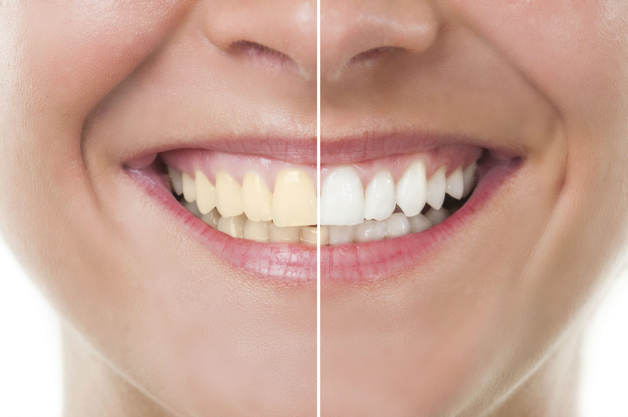 woman-teeth-closeup-before-after-smile-patient-cosmetic-dentistry-near-me-san-mateo-ca