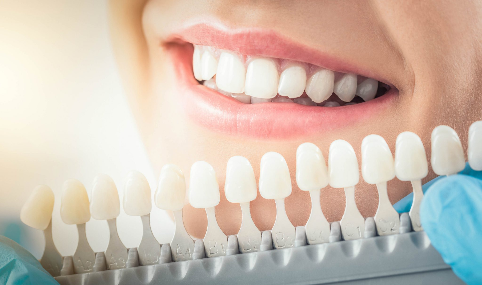 cosmetic-dentistry-near-me-san-mateo-ca-teeth-whitening