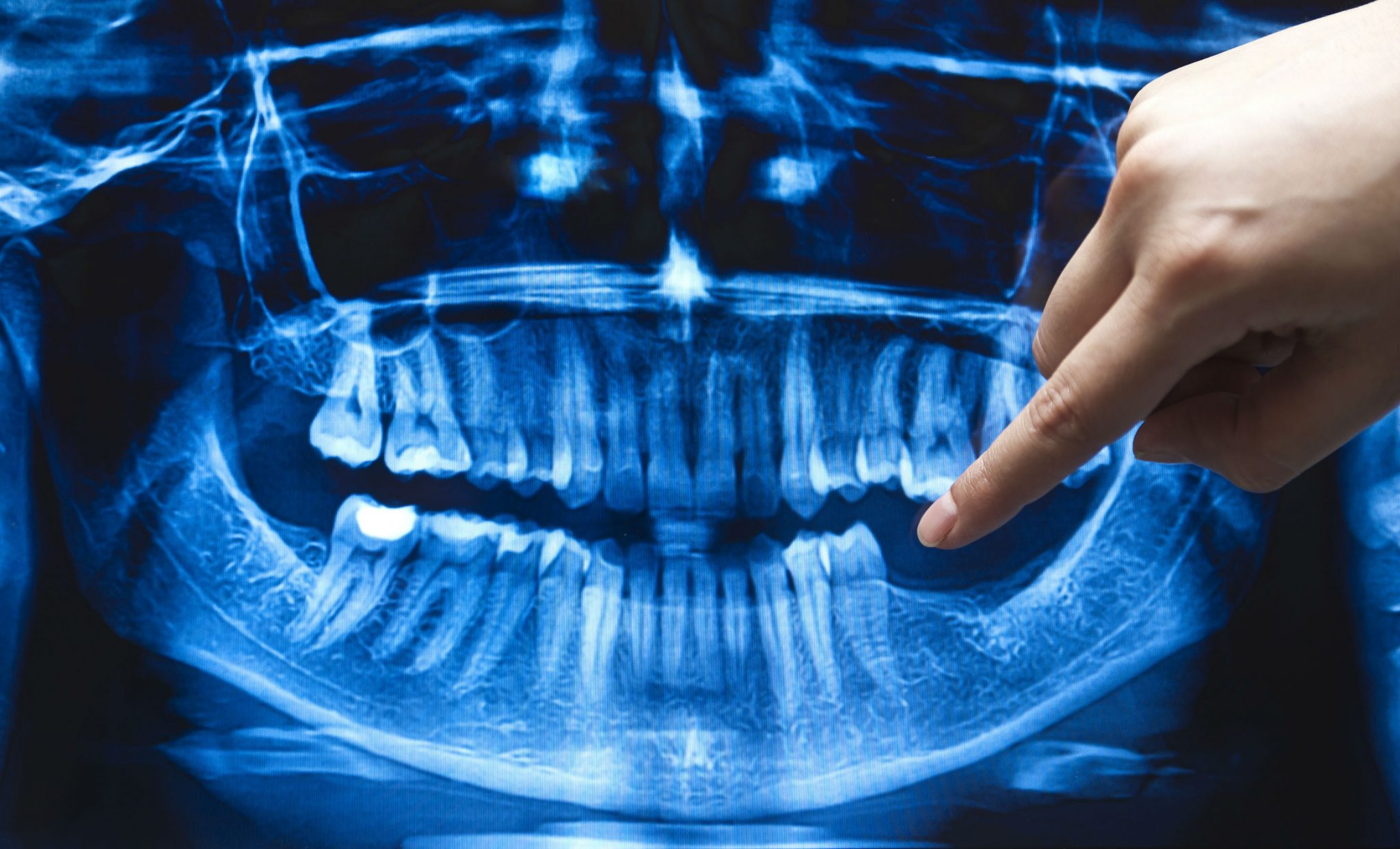 xray print of mouth for cosmetic dental procedures at best dentist near me