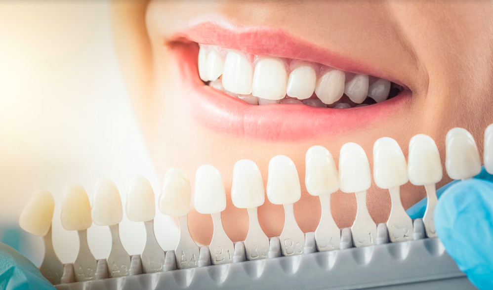 woman smiling with teeth at dentist office with teeth coloring chart
